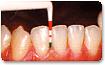 1.ブラシング状態・歯・歯のチェック